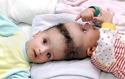 Egyptian conjoined twins, Ahmed and Mohamed Ibrahim, are seen in this file photo taken on March 26, 2002, in a Cairo hospital.  Surgery to separate the conjoined 22-month-old twins could be delayed or canceled unless $125,000 is raised to offset the estimated $2 million cost, a hospital official said.  In the meantime, however, Supercuts has offered to consider it a single haircut in order to help the family save money.  (Reuters)