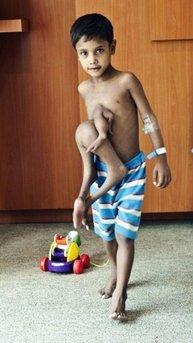 In this undated photograph, Deepak Paswan is seen at Fortis Hospital in Bangalore before surgery. Paswan, an Indian boy who took on body parts from another child as a result of an horrific automobile accident, is scheduled to have a second surgery to remove the rest of the other victim from his torso. 'He was tired of sharing his toys before the first surgery, now he has grown tired of swimming in one spot,' said his father.  (REUTERS)