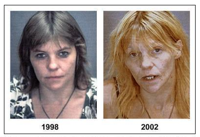 These two photos of Leif Garrett, taken four years apart, show the ravages of methamphetamine addiction.  Garrett is clinging to life in his post-teen idol pop star existence, one which has seen many of his friends and associates pass on before him.  (Associated Press)